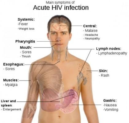 Aids: aumentano casi tra omosessuali e cresce tempo diagnosi